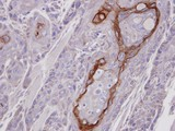 IHC of paraffin-embedded Ca922 xenograft using CROT antibody at 1:100 dilution.