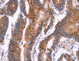 Immunohistochemistry of Human colon cancer using CROT Polyclonal Antibody at dilution of 1:50.