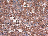 CPA1 / Carboxypeptidase A Antibody - IHC of paraffin-embedded Adenocarcinoma of ovary using anti-CPA1 mouse monoclonal antibody.