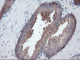 IHC of paraffin-embedded Carcinoma of Human prostate tissue using anti-CPA2 mouse monoclonal antibody.