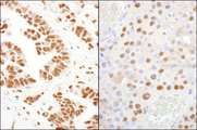CPSF160 / CPSF1 Antibody - Detection of Human and Mouse CPSF160 by Immunohistochemistry. Sample: FFPE section of human ovarian carcinoma (left) and mouse renal cell carcinoma (right). Antibody: Affinity purified rabbit anti-CPSF160 used at a dilution of 1:200 (1 ug/ml). Detection: DAB.
