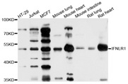 CRF2-12 / IL28RA Antibody - Western blot analysis of extracts of various cell lines, using IFNLR1 antibody at 1:1000 dilution. The secondary antibody used was an HRP Goat Anti-Rabbit IgG (H+L) at 1:10000 dilution. Lysates were loaded 25ug per lane and 3% nonfat dry milk in TBST was used for blocking. An ECL Kit was used for detection and the exposure time was 10s.