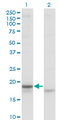 CRH / CRF Antibody - Western Blot analysis of CRH expression in transfected 293T cell line by CRH monoclonal antibody (M02), clone 2B11.Lane 1: CRH transfected lysate(21.4 KDa).Lane 2: Non-transfected lysate.