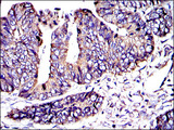 IHC of paraffin-embedded rectum cancer tissues using CRK mouse monoclonal antibody with DAB staining.