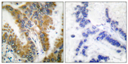 Immunohistochemistry analysis of paraffin-embedded human lung carcinoma tissue, using CrkL Antibody. The picture on the right is blocked with the synthesized peptide.