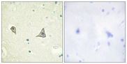 CSF1R / CD115 / FMS Antibody - Immunohistochemistry analysis of paraffin-embedded human brain tissue, using M-CSF Receptor Antibody. The picture on the right is blocked with the synthesized peptide.