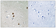 CTBP1 / CTBP Antibody - Immunohistochemistry analysis of paraffin-embedded human brain, using CtBP1 (Phospho-Ser422) Antibody. The picture on the right is blocked with the phospho peptide.