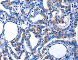 Immunohistochemistry of paraffin-embedded Human thyroid cancer using CTSH Polyclonal Antibody at dilution of 1:5.