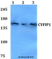 Western blot of CYFIP1 antibody at 1:500 dilution. Lane 1: HEK293T whole cell lysate. Lane 2: Raw264.7 whole cell lysate. Lane 3: PC12 whole cell lysate.