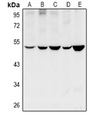 CYP11B1+2 Antibody - Western blot analysis of Cytochrome P450 11B1/2 expression in HEK293T (A), LO2 (B), SGC7901 (C), PC12 (D), CT26 (E) whole cell lysates.
