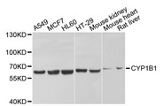 CYP1B1 Antibody - Western blot analysis of extracts of various cell lines, using CYP1B1 antibody at 1:1000 dilution. The secondary antibody used was an HRP Goat Anti-Rabbit IgG (H+L) at 1:10000 dilution. Lysates were loaded 25ug per lane and 3% nonfat dry milk in TBST was used for blocking. An ECL Kit was used for detection and the exposure time was 5s.