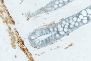 Intestine (double label): Desmin (brown, ImmPACT™ DAB). Cytokeratin (blue/gray, Vector® SG).