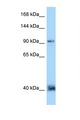 DACT1 / DAPPER Antibody - DACT1 antibody Western blot of 435S Cell lysate. Antibody concentration 1 ug/ml.  This image was taken for the unconjugated form of this product. Other forms have not been tested.