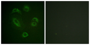 Immunofluorescence analysis of A549 cells, using DAPP1 (Phospho-Tyr139) Antibody. The picture on the right is blocked with the phospho peptide.