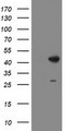 HEK293T cells were transfected with the pCMV6-ENTRY control (Left lane) or pCMV6-ENTRY DBT (Right lane) cDNA for 48 hrs and lysed. Equivalent amounts of cell lysates (5 ug per lane) were separated by SDS-PAGE and immunoblotted with anti-DBT.