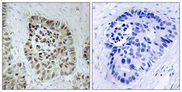 Immunohistochemistry analysis of paraffin-embedded human lung carcinoma tissue, using Artemis Antibody. The picture on the right is blocked with the synthesized peptide.