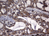 IHC of paraffin-embedded Carcinoma of Human lung tissue using anti-DDOST mouse monoclonal antibody. (Heat-induced epitope retrieval by 1 mM EDTA in 10mM Tris, pH9.0, 120°C for 3min).