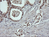 IHC of paraffin-embedded Carcinoma of Human prostate tissue using anti-DDT mouse monoclonal antibody.