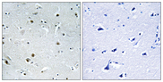 DDX24 Antibody - Immunohistochemistry analysis of paraffin-embedded human brain, using DDX24 Antibody. The picture on the right is blocked with the synthesized peptide.