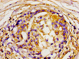 Immunohistochemistry image of paraffin-embedded human breast cancer at a dilution of 1:100