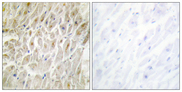 Immunohistochemistry analysis of paraffin-embedded human heart tissue, using DLX3 Antibody. The picture on the right is blocked with the synthesized peptide.
