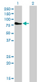 Western Blot analysis of DMPK expression in transfected 293T cell line by DMPK monoclonal antibody (M01), clone 2F7.Lane 1: DMPK transfected lysate(69.4 KDa).Lane 2: Non-transfected lysate.