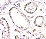 DMRT1 Antibody - IHC analysis of DMRT1 using anti-DMRT1 antibody. DMRT1 was detected in paraffin-embedded section of human testis tissue. Heat mediated antigen retrieval was performed in citrate buffer (pH6, epitope retrieval solution) for 20 mins. The tissue section was blocked with 10% goat serum. The tissue section was then incubated with 1µg/ml rabbit anti-DMRT1 Antibody overnight at 4°C. Biotinylated goat anti-rabbit IgG was used as secondary antibody and incubated for 30 minutes at 37°C. The tissue section was developed using Strepavidin-Biotin-Complex (SABC) with DAB as the chromogen.