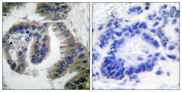 DNAJB1 / Hsp40 Antibody - Immunohistochemistry analysis of paraffin-embedded human lung carcinoma tissue, using HSP40 Antibody. The picture on the right is blocked with the synthesized peptide.