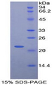 Recombinant Parathyroid Hormone Related Protein By SDS-PAGE