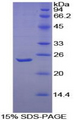 TNFSF13 / APRIL Protein - Recombinant Tumor Necrosis Factor Ligand Superfamily, Member 13 By SDS-PAGE
