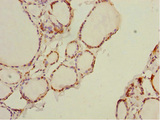 Immunohistochemistry of paraffin-embedded human thyroid tissue at dilution 1:100