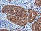 IHC of paraffin-embedded Adenocarcinoma of Human endometrium tissue using anti-DUSP23 mouse monoclonal antibody.