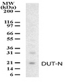 Western blot detection of DUT-N in HeLa cell lysate using antibody at a dilution of 1:1000.