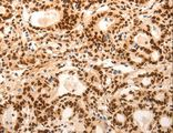 Immunohistochemistry of Human gastric cancer using E2F7 Polyclonal Antibody at dilution of 1:60.