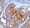 Formalin-fixed, paraffin-embedded human colon carcinoma stained with Secretory Component Glycoprotein antibody (ECM1/792).  This image was taken for the unmodified form of this product. Other forms have not been tested.
