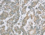 Immunohistochemistry of Human colon cancer using EDA2R Polyclonal Antibody at dilution of 1:50.
