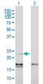 EDN1 / Endothelin 1 Antibody - Western Blot analysis of EDN1 expression in transfected 293T cell line by EDN1 monoclonal antibody (M01), clone 3D6.Lane 1: EDN1 transfected lysate(24 KDa).Lane 2: Non-transfected lysate.