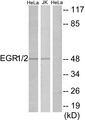 EGR1 + EGR2 Antibody - Western blot analysis of lysates from HeLa and Jurkat cells, using EGR1/2 Antibody. The lane on the right is blocked with the synthesized peptide.