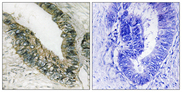 EIF2AK3 / PERK Antibody - Immunohistochemistry analysis of paraffin-embedded human colon carcinoma, using PEK/PERK Antibody. The picture on the right is blocked with the synthesized peptide.