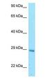 EIF3K Antibody - EIF3K antibody Western Blot of Mouse Liver.  This image was taken for the unconjugated form of this product. Other forms have not been tested.
