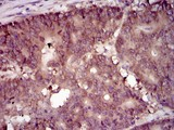 IHC of paraffin-embedded colon cancer tissues using EIF4B mouse monoclonal antibody with DAB staining.
