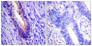 EIF4G1 / EIF4G Antibody - Immunohistochemistry analysis of paraffin-embedded human colon carcinoma tissue, using eIF4G Antibody. The picture on the right is blocked with the synthesized peptide.