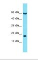 Western blot of Human NCI-H226. EIF5A antibody dilution 1.0 ug/ml.  This image was taken for the unconjugated form of this product. Other forms have not been tested.
