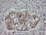 IHC of paraffin-embedded Human pancreas tissue using anti-EIF5A2 mouse monoclonal antibody.