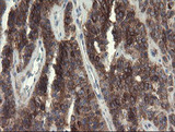 EIF5A2 Antibody - IHC of paraffin-embedded Carcinoma of Human pancreas tissue using anti-EIF5A2 mouse monoclonal antibody.