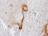 IHC of paraffin-embedded Ca922 xenograft using ENTPD6 antibody at 1:100 dilution.