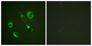 EPH Receptor A2+A3 Antibody - Immunofluorescence analysis of HeLa cells, using EPHA2/3 (Phospho-Tyr588/596) Antibody. The picture on the right is blocked with the phospho peptide.