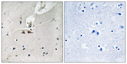 EPH Receptor B1+B2+B3 Antibody - Immunohistochemistry analysis of paraffin-embedded human brain, using Ephrin B1/B2/B3 (Phospho-Tyr324) Antibody. The picture on the right is blocked with the phospho peptide.