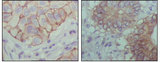 IHC of paraffin-embedded human lung cancer (left) and colon cancer (right) showing cytoplasmic localization with DAB staining using EphB1 mouse monoclonal antibody.