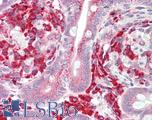 Anti-EPM2A / Laforin antibody IHC staining of human small intestine. Immunohistochemistry of formalin-fixed, paraffin-embedded tissue after heat-induced antigen retrieval.